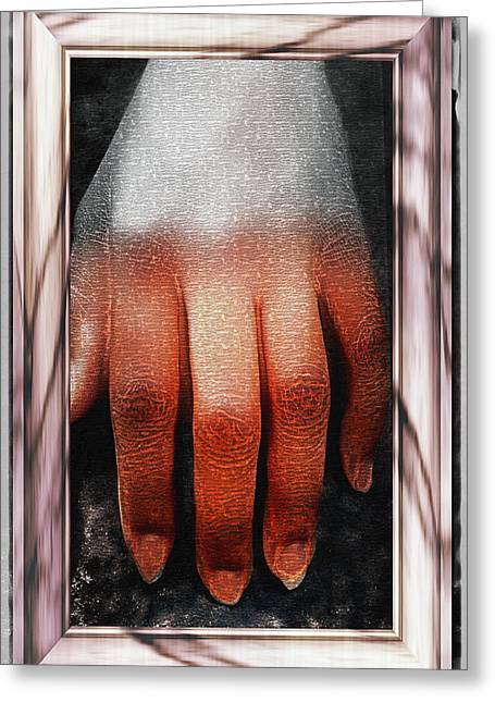 Female Body Greeting Cards - Fingers on a Rock Framed Greeting Card by Kellice Swaggerty
