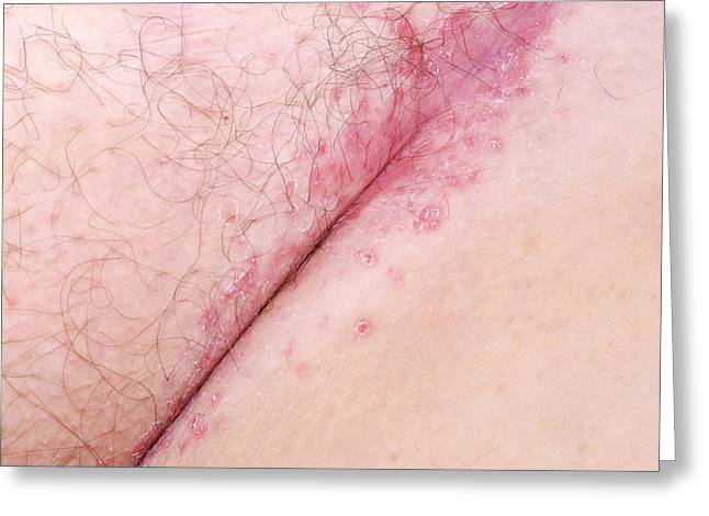 Flexural Psoriasis Of A Groin Cleft Greeting Card by Science Photo Library