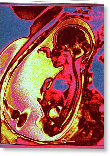 Foetus In Uterus Greeting Card by Larry Berman