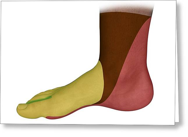 Tibial Nerve Greeting Cards - Foot Medial Nerve Regions, Artwork Greeting Card by D & L Graphics