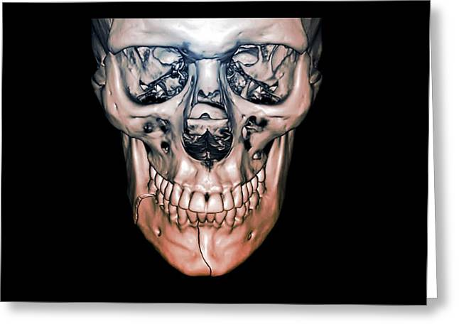 Fractured Jaw Greeting Card by Zephyr