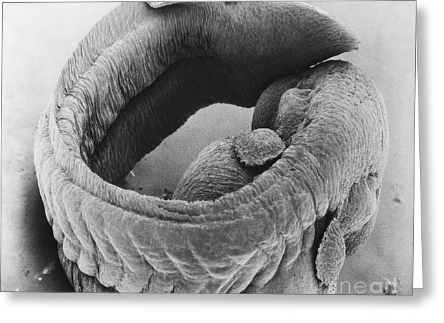 Embryo Greeting Cards - Frog Embryo Sem Greeting Card by David M. Phillips