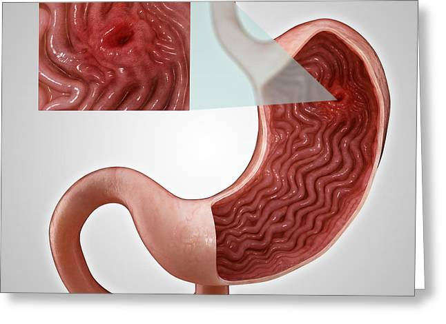 Gastric Ulcer Greeting Cards - Gastric Ulcer Greeting Card by Science Picture Co