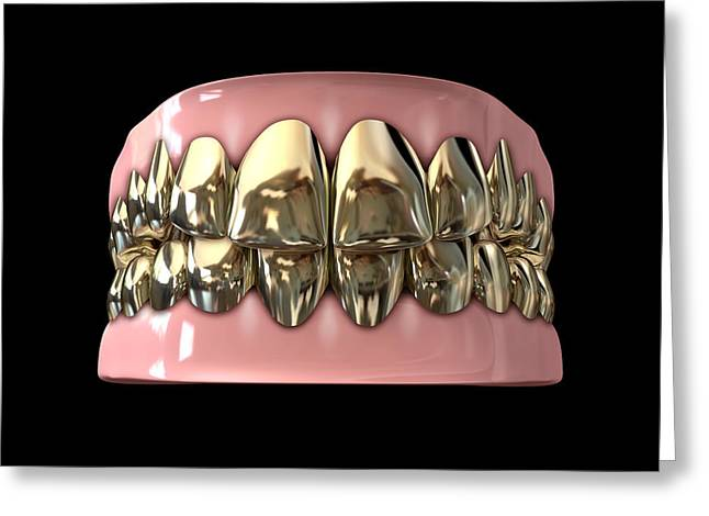 Teeth Greeting Cards - Golden Gangster Teeth And Gums Greeting Card by Allan Swart