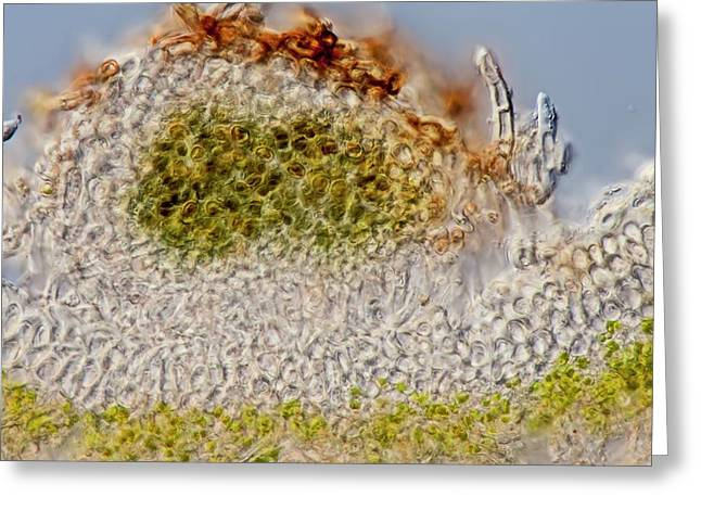 Green Dog Lichen Section Greeting Card by Gerd Guenther