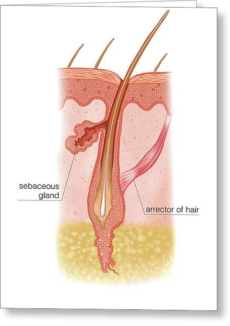 Hair In Catagen Phase Greeting Card by Asklepios Medical Atlas