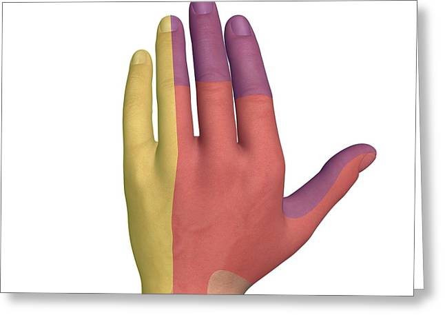 Hand Dorsal Nerve Regions, Artwork Greeting Card by D & L Graphics