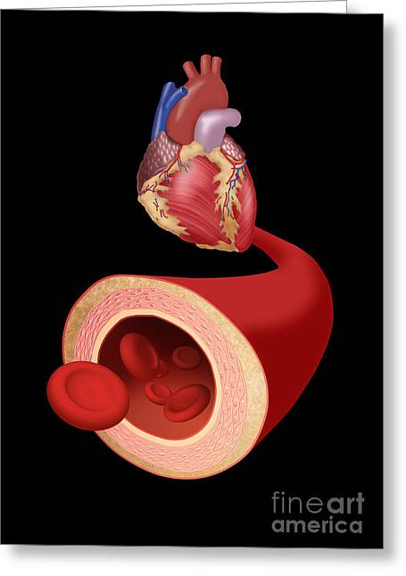Acute Greeting Cards - Heart And Artery Greeting Card by Monica Schroeder / Science Source
