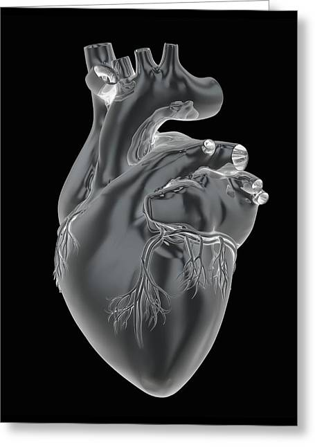 Heart And Coronary Arteries, Artwork Greeting Card by Science Photo Library