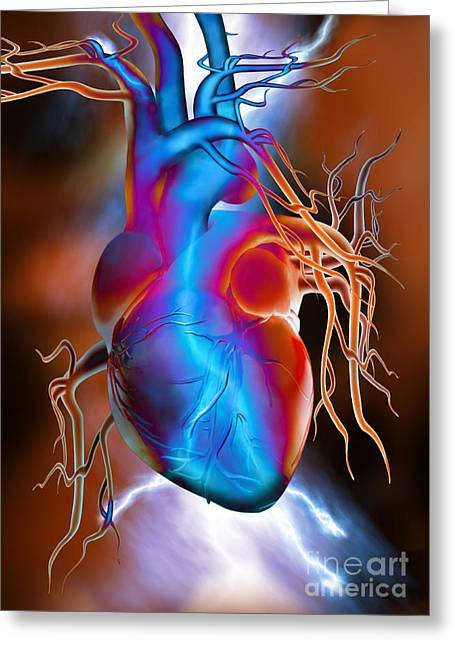 Digital Imaging Greeting Cards - Heart Attack Greeting Card by Mike Agliolo
