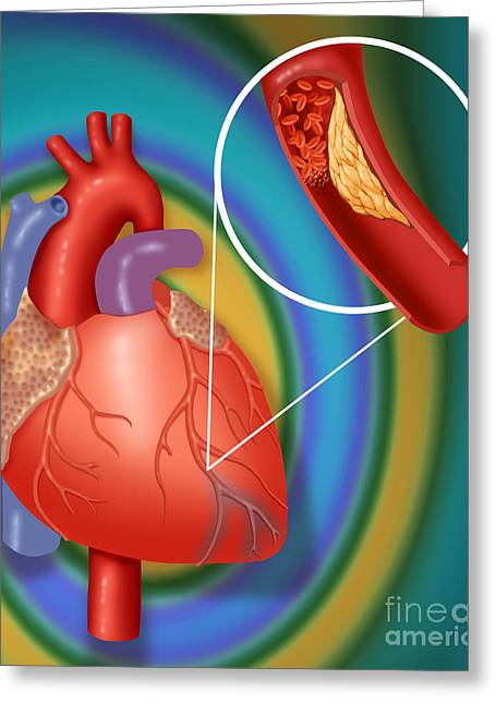 Acute Greeting Cards - Heart Attack Showing Blood Clot Greeting Card by Monica Schroeder / Science Source