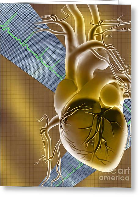 Digital Imaging Greeting Cards - Heart Graph Greeting Card by Mike Agliolo