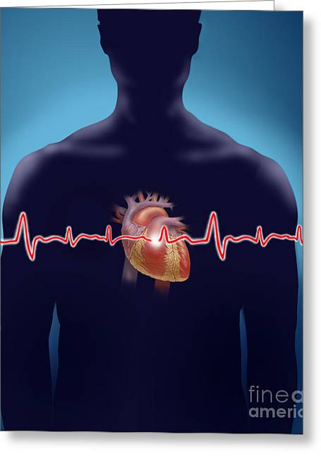 Medical Greeting Cards - Heart Rate Greeting Card by Jim Dowdalls