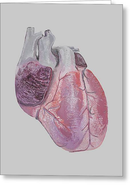 Heart Greeting Card by Terence Leano