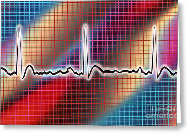Heart Disease Greeting Cards - Heart Trace Greeting Card by Mike Agliolo