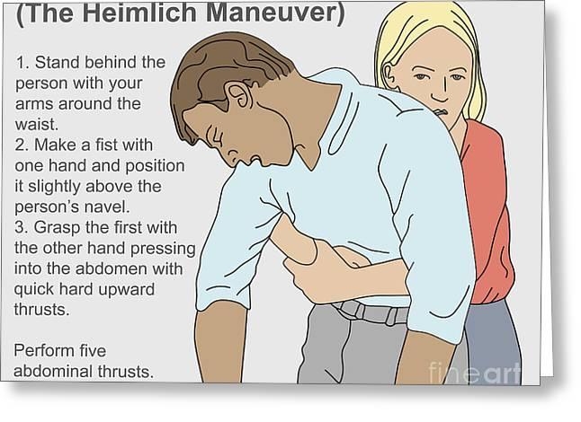Choking Greeting Cards - Heimlich Maneuver Greeting Card by Gwen Shockey