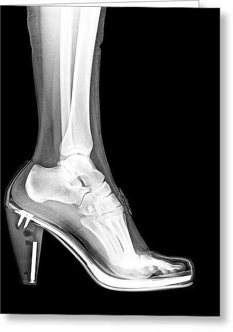 High Heel Shoe X-ray Greeting Card by Photostock-israel