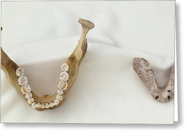 Theria Greeting Cards - Hominoid and human mandible Greeting Card by Science Photo Library