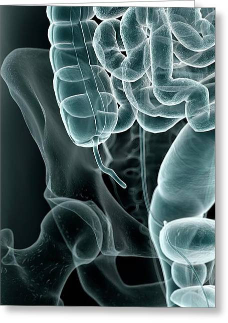 Human Appendix Greeting Card by Sciepro