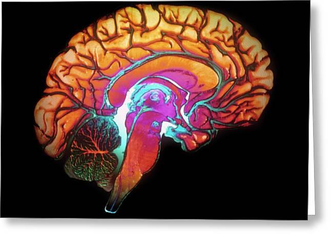 Human Brain Greeting Card by Gjlp/cnri