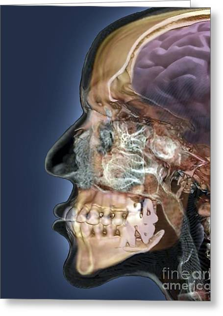 Ethmoid Bone Greeting Cards - Human Head, 3d Ct Scan Greeting Card by Zephyr
