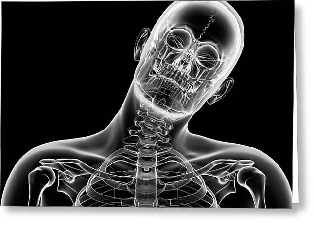 Human Head Bending Sideways Greeting Card by Sebastian Kaulitzki