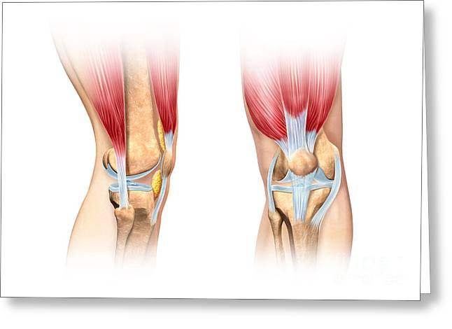 Human Joint Greeting Cards - Human Knee Cutaway Illustration Greeting Card by Leonello Calvetti