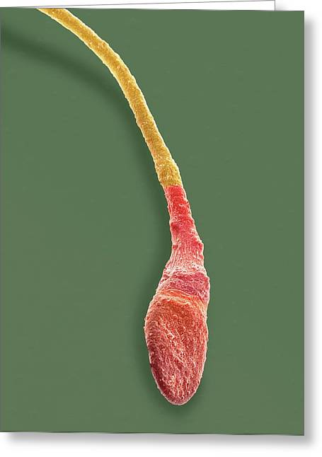 Human Sperm Cell Greeting Card by Steve Gschmeissner