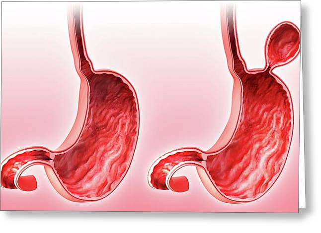 Human Stomach With Hernia Greeting Card by Pixologicstudio