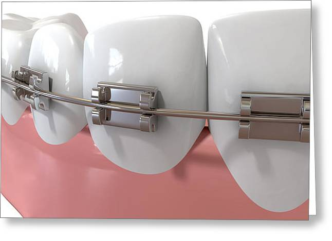 False Greeting Cards - Human Teeth Extreme Closeup With Metal Braces Greeting Card by Allan Swart