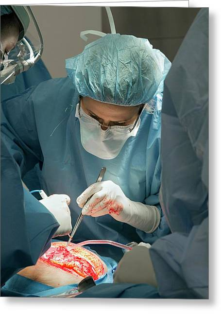 Hysterectomy In Endometrial Cancer Greeting Card by Jim West