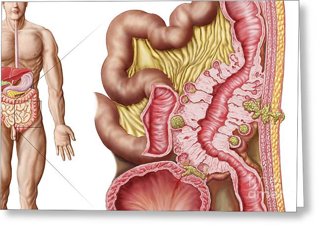 Conditions Digital Greeting Cards - Illustration Of Diverticulosis Greeting Card by Stocktrek Images