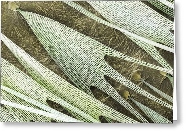 Scanning Electron Microscope Greeting Cards - Indian Moon Moth Scales (SEM) Greeting Card by Science Photo Library