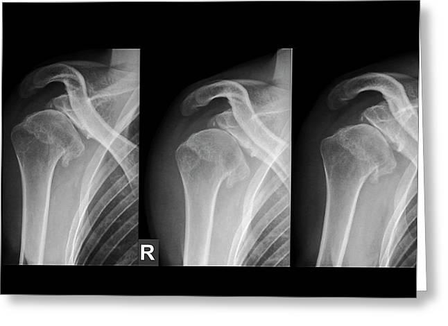 Injured Shoulder Greeting Card by Zephyr