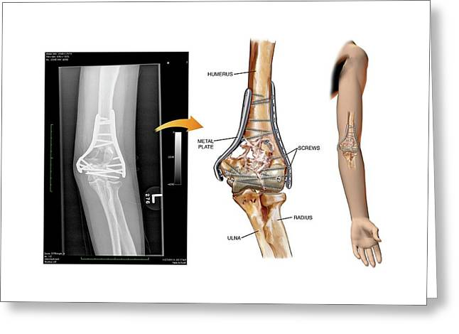 Internal Fixation Of Fractured Elbow Greeting Card by John T. Alesi