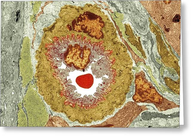 Basement Membrane Greeting Cards - Intestinal arteriole, TEM Greeting Card by Science Photo Library