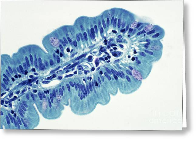 Transmitted Light Micrograph Greeting Cards - Intestinal Villi Lm Greeting Card by Dr. Cecil H. Fox