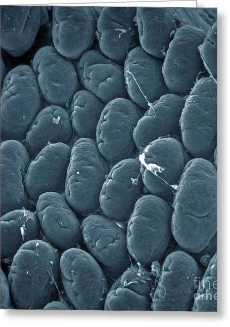 Intestinal Greeting Cards - Intestinal Villi, Sem Greeting Card by Spl