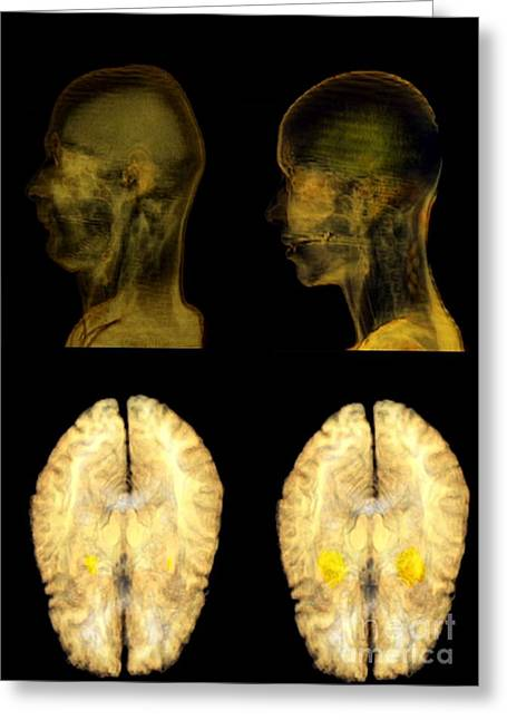 Infidelity Greeting Cards - Jealousy Research, Mri Brain Scans Greeting Card by Thierry Berrod, Mona Lisa Production