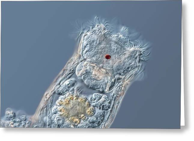 Keratella Rotifer Greeting Card by Gerd Guenther
