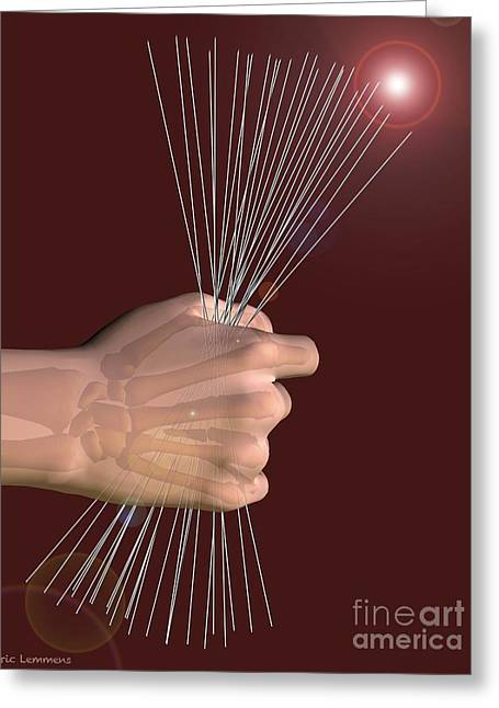 Stainless Steel Greeting Cards - Kirschner Wires, Artwork Greeting Card by D & L Graphics