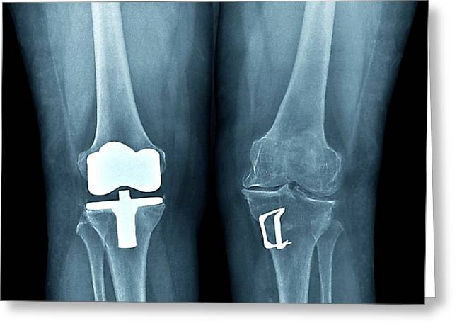 Knees After Corrective Surgery Greeting Card by Zephyr