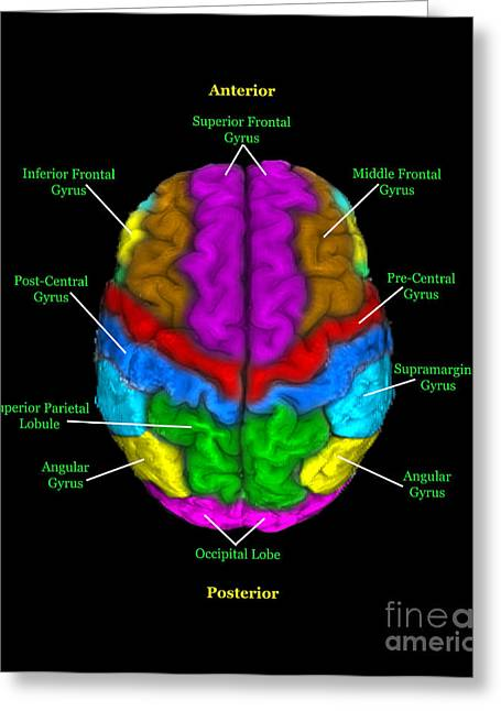Label Greeting Cards - Labeled Mri Of Normal Brain Greeting Card by Living Art Enterprises