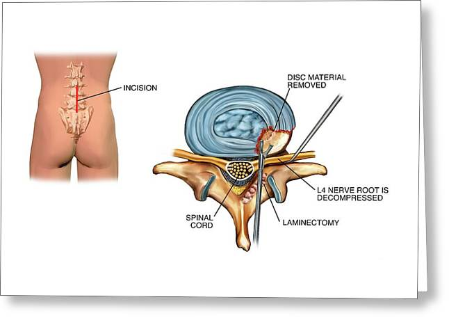 Laminectomy Surgery On Slipped Disc Greeting Card by John T. Alesi
