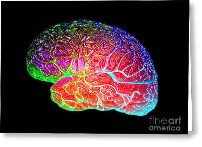 Medical Greeting Cards - Lateral View Of A Model Brain Greeting Card by Living Art Enterprises, LLC