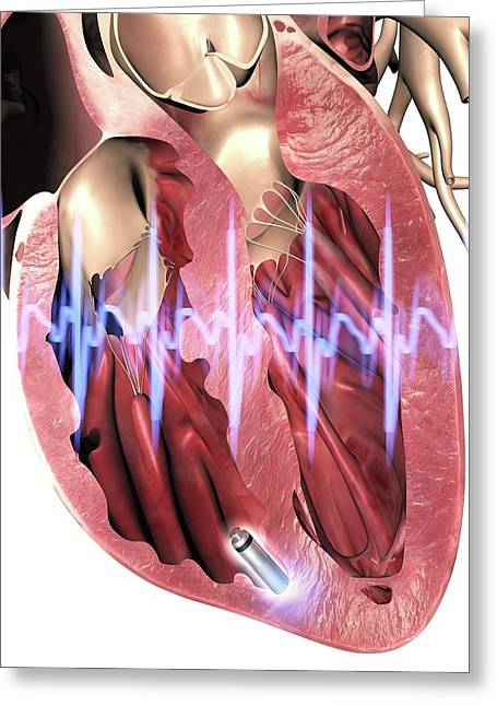 Leadless Pacemaker In Anterior Heart Greeting Card by Alfred Pasieka