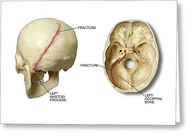 Left Posterior Occipital Skull Fracture Greeting Card by John T. Alesi