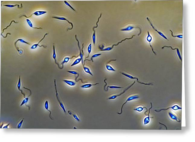 Leishmania Parasites Greeting Card by Sinclair Stammers