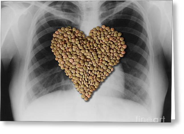 Heart Healthy Photographs Greeting Cards - Lentils, Heart-healthy Food Greeting Card by Gwen Shockey