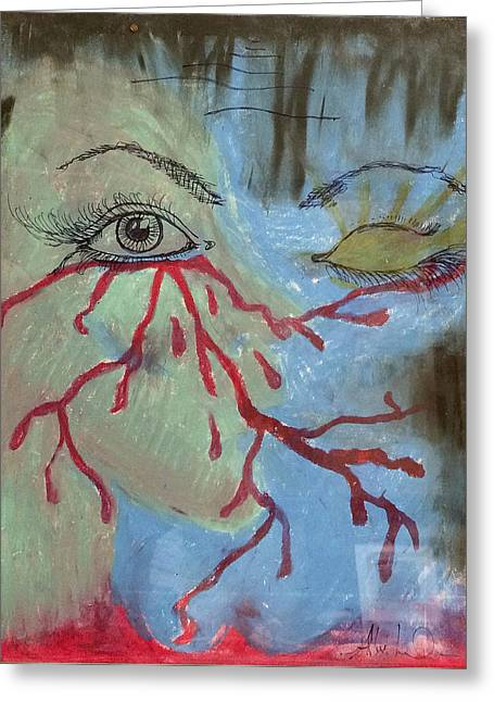 Metal Art Pastels Greeting Cards - Lifes Struggles Greeting Card by Alex Lovchez